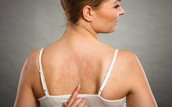 Atopowe Zapalenie Skóry - ulgę skórze przyniesie ochronny jedwab